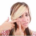 Jerawat bisul besar tidak bermata dan cara menghilangkan